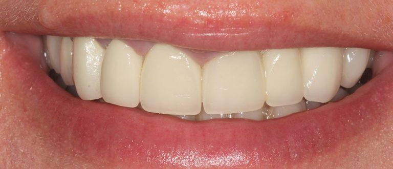 dental smile makeover in south east london