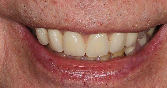 John after smile makeover at Dental Beauty Bromley in kent