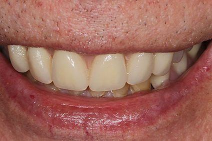 John after smile makeover at Dental Beauty Bromley in south east london