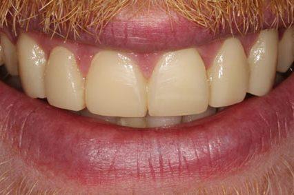 steve-after-dental-bonding