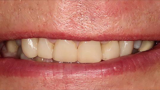 terrence composite bonding london dentist