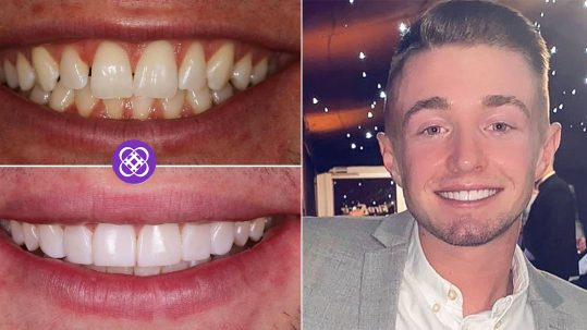 dental beauty smile makeover testimonial