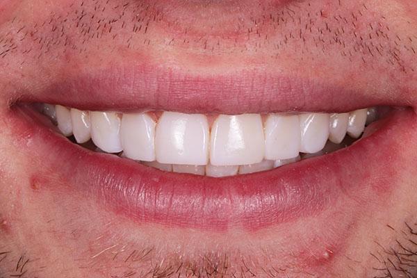dental bonding luke results