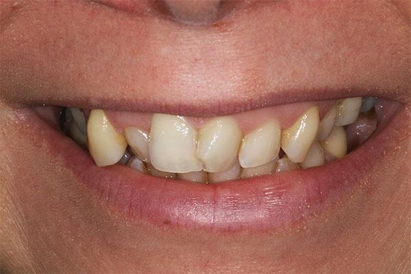 teeth straightening carlies story